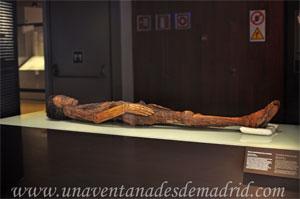 Museo Arqueológico Nacional, Restos momificados de un hombre
